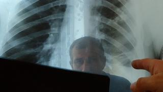 Chest x-rays of the lung are importanft for diagnosis