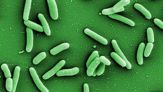 Pseudomonas aeruginosa bacteria are extremely robust and resilient and can dwell in virtually any habitat