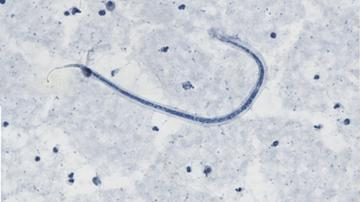 Image of a microfilaria of the roundworm Loa Loa, taken at 100x magnification.